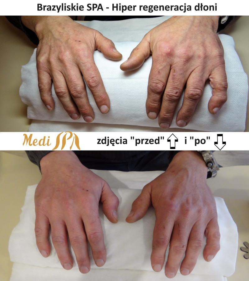 regeneracja dłoni Brazylijskie spa - Salon Medi SPA Cypryjska 4 Stegny Sadyba Mokotów