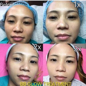 Md dr bb glow treatment serum bb cream korean whitening 10 ampoules no 21 1508583092 2106894b3