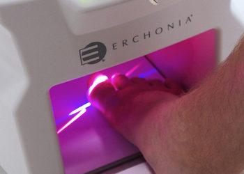 Podologia HELP  - laserowe leczenie grzybicy paznokci - lunula laser