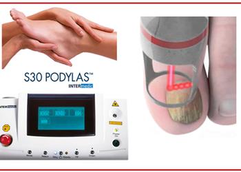 Podologia HELP  - laserowe leczenie grzybicy paznokci - podylas laser