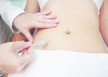 Velvet Skin Clinic - karboksyterapia blizn i rozstępów