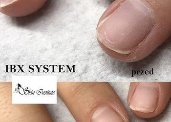 Skin Institute - ibx- regeneracja paznokci uzupełnienie