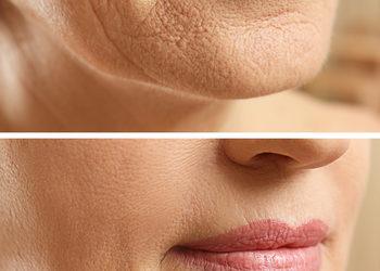 JADORE INSTYTUT - plasma iq - zmarszczki / wrinkles
