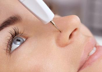 JADORE INSTYTUT - elektrokoagulacja nos / nose