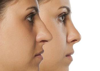 Zakątek Piękna - modelowanie nosa kwasem hialuronowym