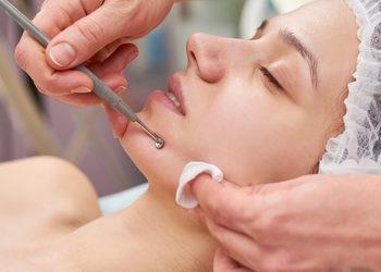 JADORE INSTYTUT - oczyszczanie manualne / manual face cleaning