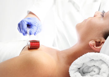JADORE INSTYTUT - mezoterapia dermaroller / mesotherapy dermaroller