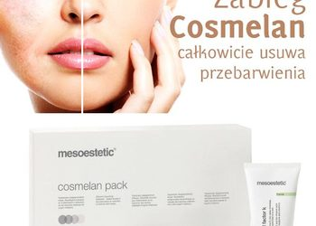 Forever Beauty Instytut Kosmetologii Gliwice - kwas medyczny mesoestetic cosmelan