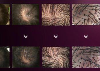 Sztuka Piękna - mezoterapia igłowa skóry głowy
