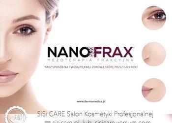 SiSi CARE - nowość!!! nanofrax zabieg na oczy i usta