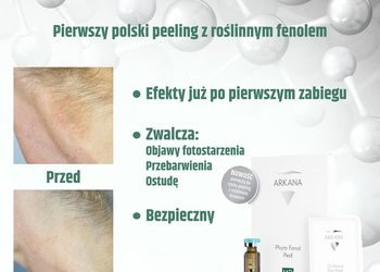 DENERIS - phyto fenol peel