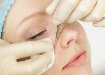 Bo jesteś wyjątkowa - manualne oczyszczanie twarzy
