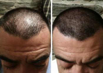 SALAMANDRA Beauty Clinic Bielsk Podlaski - pigmentacja skóry głowy (zagęszczenie włosów, kamuflażblizn, uzupełnienie włosów na głowie)