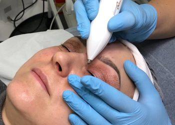 KLEOPATRA gabinet kosmetyczny - blefaroplastyka plazmowa powiek