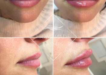 Homemade Lashes - powiększanie i modelowanie ust