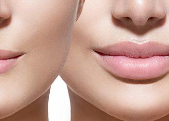 Ecosfera Centrum Podologii i Kosmetologii - konturowanie i modelowanie ust