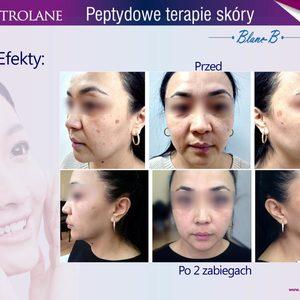 Di Origine Kosmetologia Estetyczna i Trychologia - Peptydowa kuracja