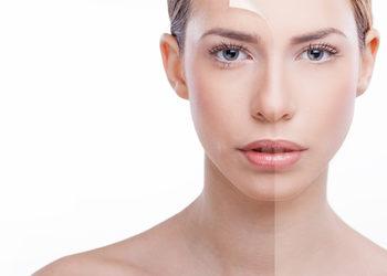 Art of Cosmetology - fotoodmładzanie - twarz, szyja, dekolt