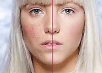 Art of Cosmetology - laserowe leczenie trądziku - twarz