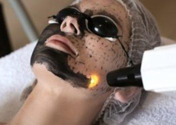 SC Beauty Clinic na Saskiej - peeling węglowy