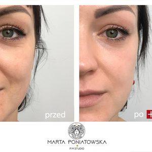 PMSTUDIO Marta Poniatowska - Terapia peelingami chemicznymi - 3-4 kwasy