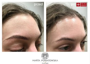 PMSTUDIO Marta Poniatowska - lift peel - dwufazowy program liftingujący