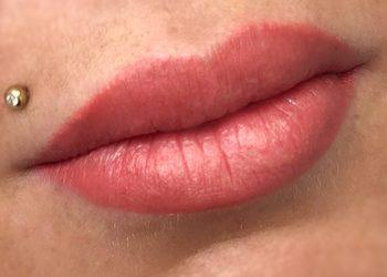 FaceTuning - usta permanentne
