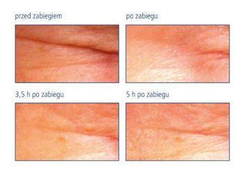 Beauty Expert - maska leorex