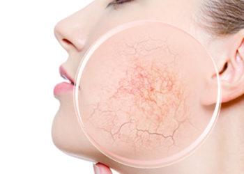 Instytut Kosmetologii Maeve - elektrokoagulacja apilus (termokoagulacja) – usuwanie znamion