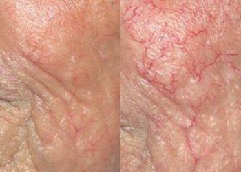 """Instytut stomatologii i dermatologii ,,Ruczaj Clinic"""" - zamykanie naczynek, redukcja rumienia dye-vl"""