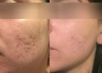 """Instytut stomatologii i dermatologii ,,Ruczaj Clinic"""" - leczenie blizn laserem frakcyjnym/osoczem bogatopłytkowym/frakcyjną radiofrekwencją mikroigłową 3d"""