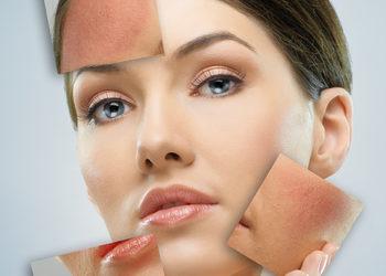 Instytut Kosmetologii Maeve - fotoodmładzanie - laseroterapia (odmładzanie, rumień)– the epi lab