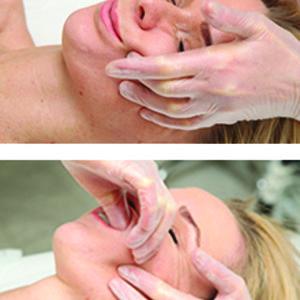 Instytut Kosmetologii Maeve - Modeling estetyczny – Lifting bez skalpela
