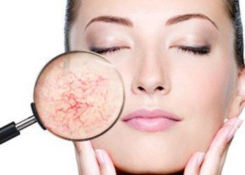 SC Beauty Clinic - laserowe zamykanie naczynek