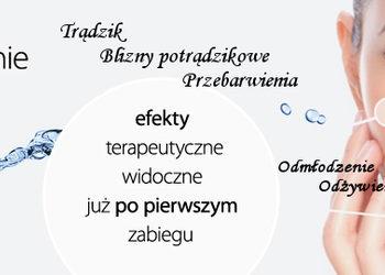 Instytut Kosmetologii Maeve - reti peel 10%retinol (odmładzanie, zmarszczki. przebarwienia) twarz, szyja, dekolt z dłońmi gratis!