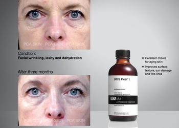 BEAUTY PREMIUM Kosmetologia Estetyczna - pca skin peeling ultra peel i + advanced booster treatment / retinol