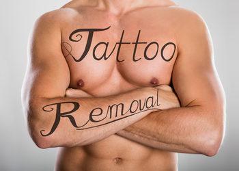 Beauty Story Kosmetologia Estetyczna - laserowe usuwanie tatuażu qswitch