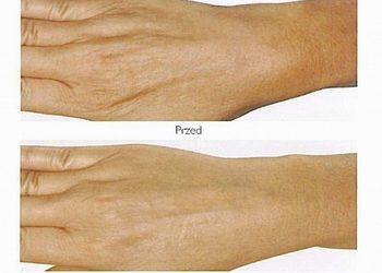LILU HAIR&SPA - zabieg mezoterapii mikroigłowej na dłonie