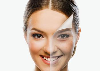 SKIN PERFECT Gabinet Nowoczesnej Kosmetyki - mesopeel jessner - anti aging (twarz z linią żuchwy)