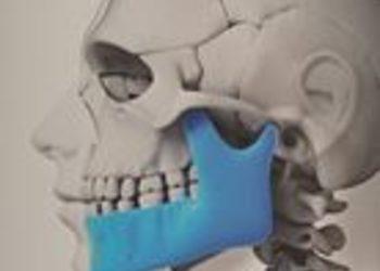 Prof&Care - rehabilitacja stomatologiczna