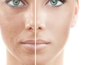 Royal's Hair & Body - peeling kawitacyjny twarzy szyi i dekoltu + indywidualny zabieg + głowica ciepło zimno
