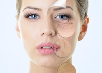 KOBIETERIA SALON KOSMETYCZNY - hifu lifting twarzy (do linii żuchwy)