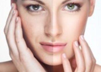 Instytut Kosmetologii Maeve - peeling mlekowy environ +i karboksyterapia co2 bezigłowa + maska
