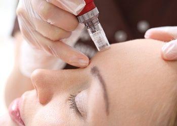 Twój Kosmetolog Aleksandra Wawro -Stalowe Magnolie Beauty Clinic Wawro&Chudzik - mezoterapia mikroigłowa dermapen - twarz +szyja