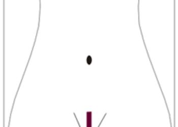 Gabinet Kosmetologiczny Metamorfoza - depilacja - bikini francuskie