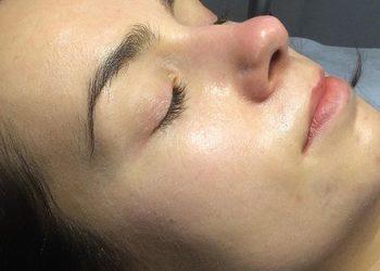 Nadia Flieger Beauty - bb glow beauty twarz - pakiet 4 zabiegów