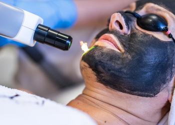 YASUMI SPA - laserowy peeling węglowy black doll | twarz lub dekolt (zabieg rozszerzony)
