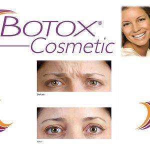 Botoxfaq