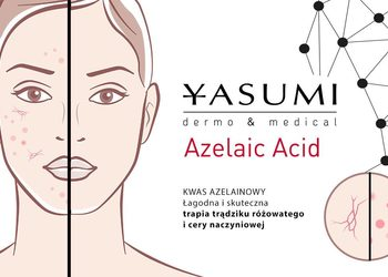 YASUMI SPA - kwas azelainowy - azelaic acid peel  |  plecy (gorna część) [38]