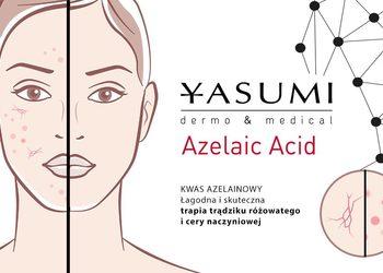 YASUMI SPA - kwas azelainowy - azelaic acid peel  |  twarz [38]